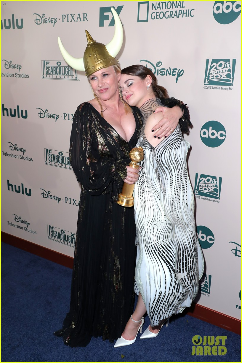 joey king reveals how patricia arquette gave her that bruise 01
