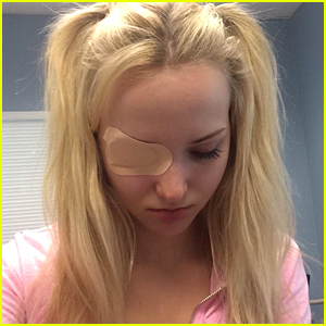 Dove Cameron Scratches Her Eye After Scoring Teen Choice Award Nomination