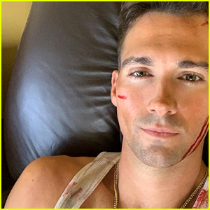 James Maslow Gets 'Bloodied' Up While Filming 'Wolf Hound'