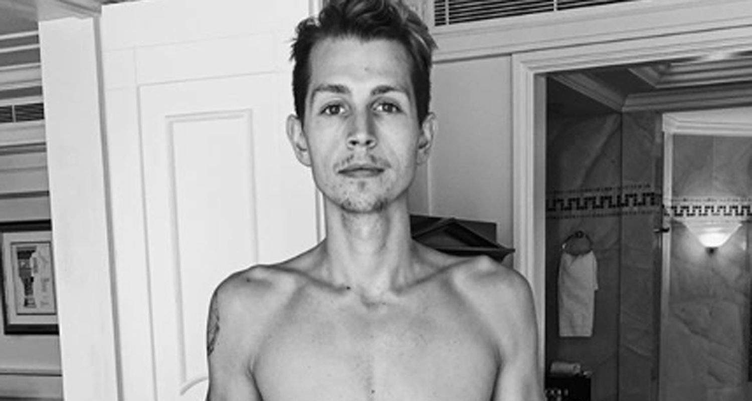 The Vamps' James McVey Goes Shirtless to Show Off His Dramatic Transformation