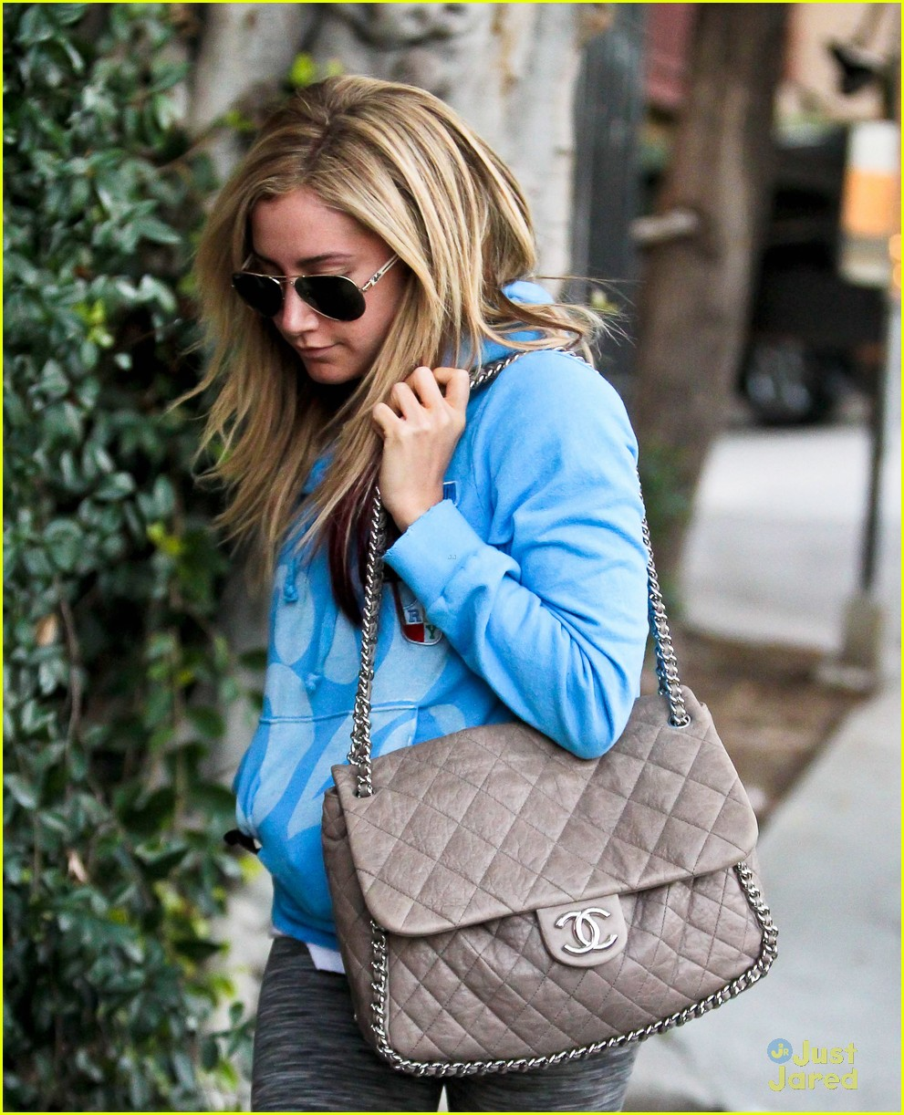 ashley tisdale martin johnson studio city smiles 09