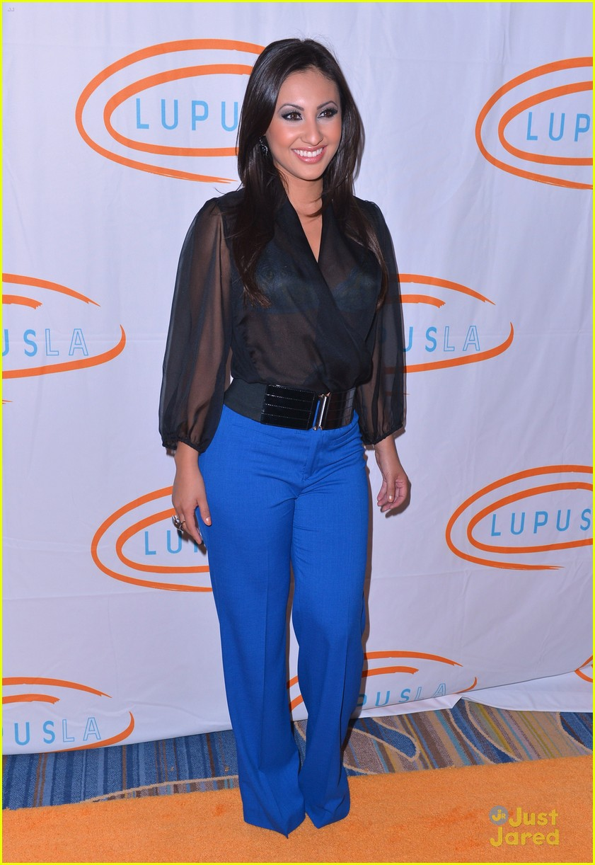 francia raisa roshon fegan lupus 01